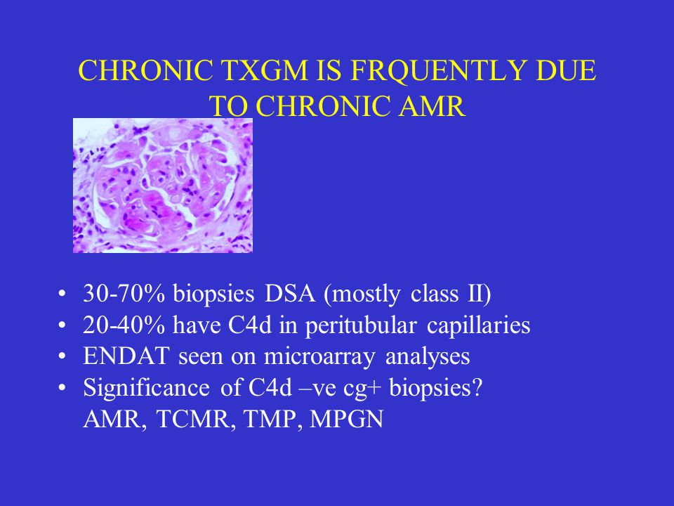CHRONIC TXGM IS FRQUENTLY DUE TO CHRONIC AMR