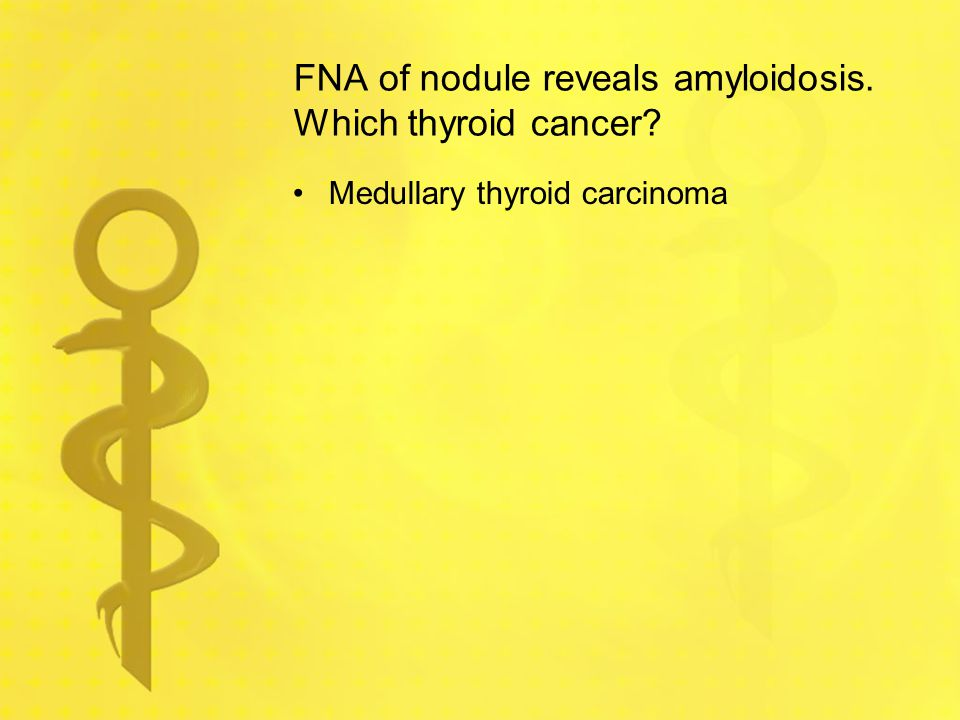 FNA of nodule reveals amyloidosis. Which thyroid cancer