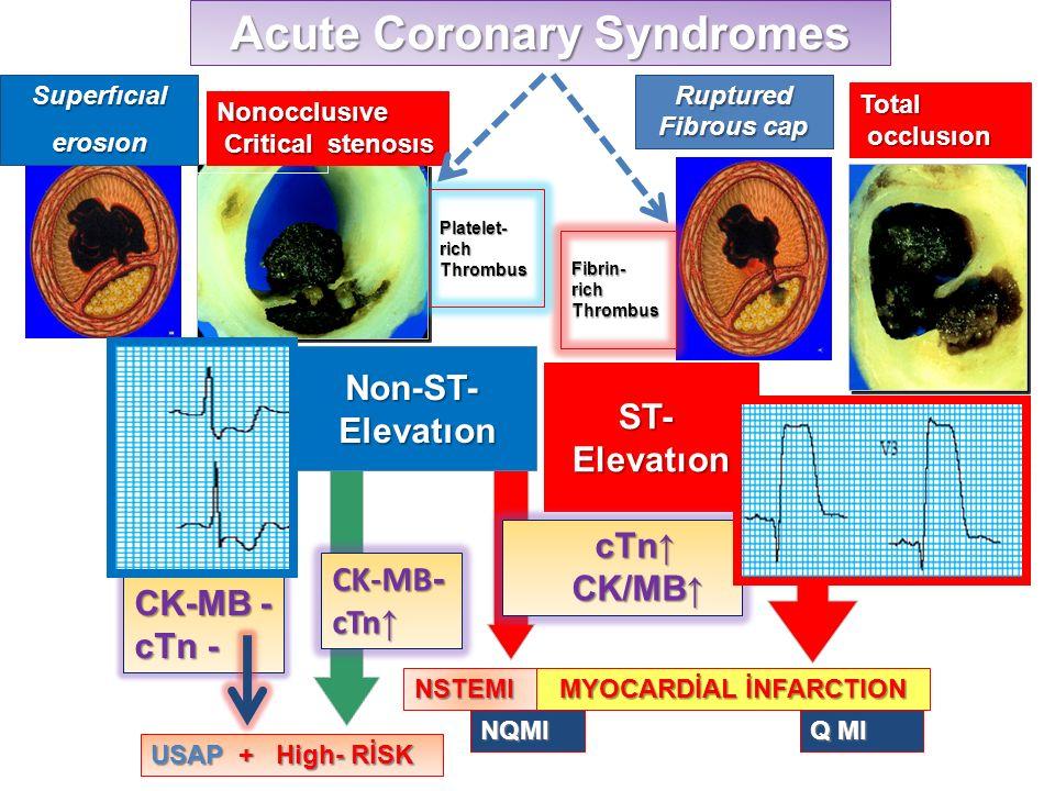 Acute Coronary Syndromes MYOCARDİAL İNFARCTION