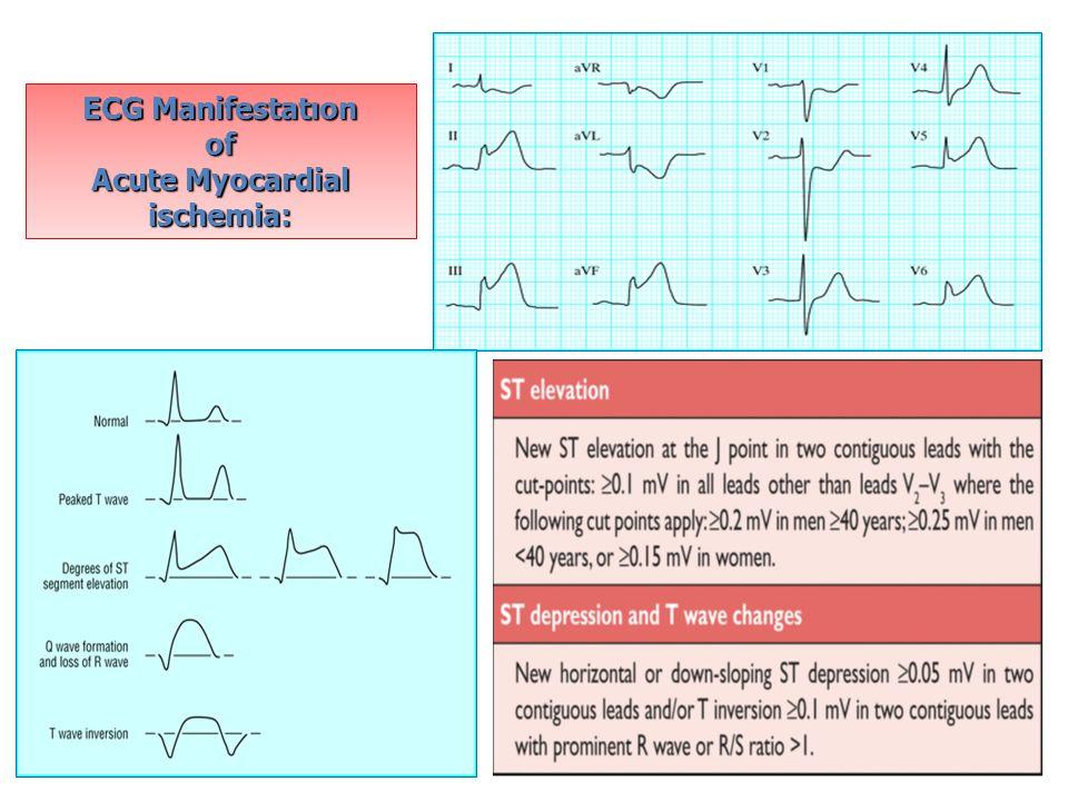 Acute Myocardial ischemia: