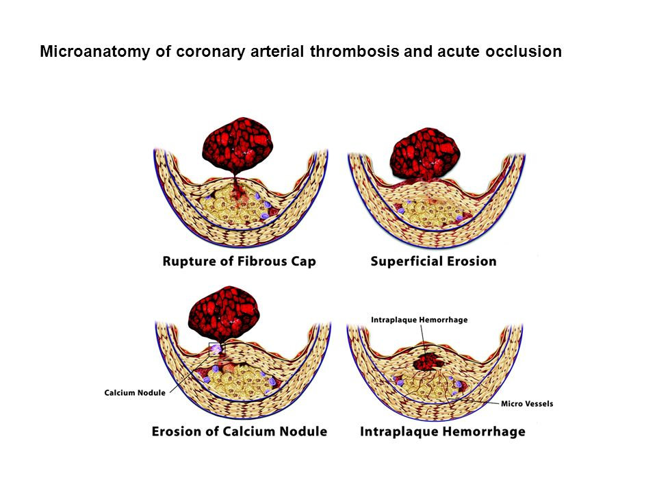 Microanatomy of coronary arterial thrombosis and acute occlusion