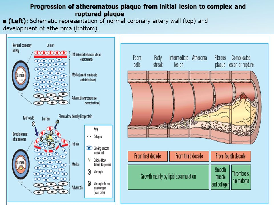 Progression of atheromatous plaque from initial lesion to complex and ruptured plaque ■ (Left): Schematic representation of normal coronary artery wall (top) and development of atheroma (bottom).