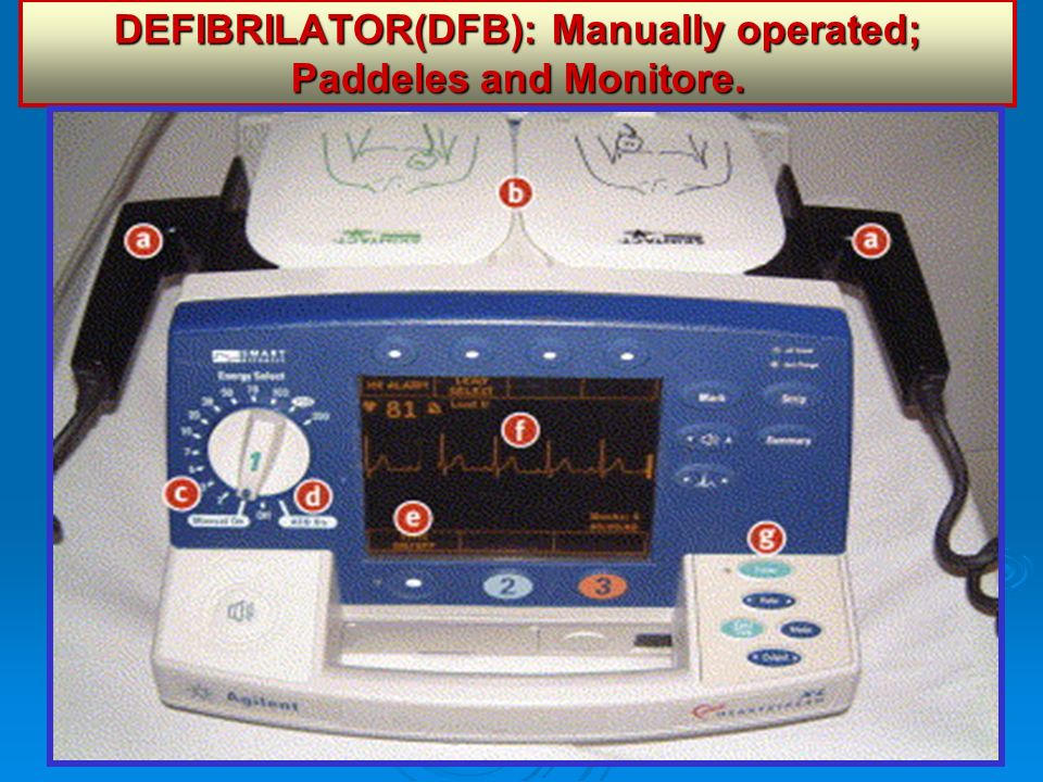 DEFIBRILATOR(DFB): Manually operated; Paddeles and Monitore.