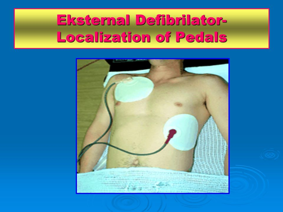 Eksternal Defibrilator- Localization of Pedals