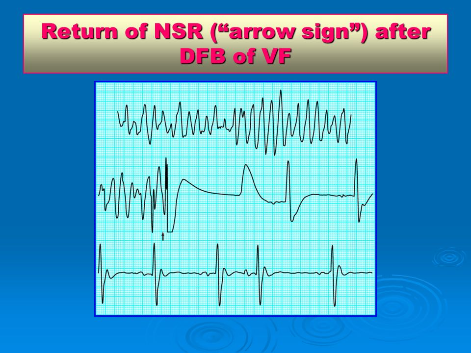 Return of NSR ( arrow sign ) after DFB of VF