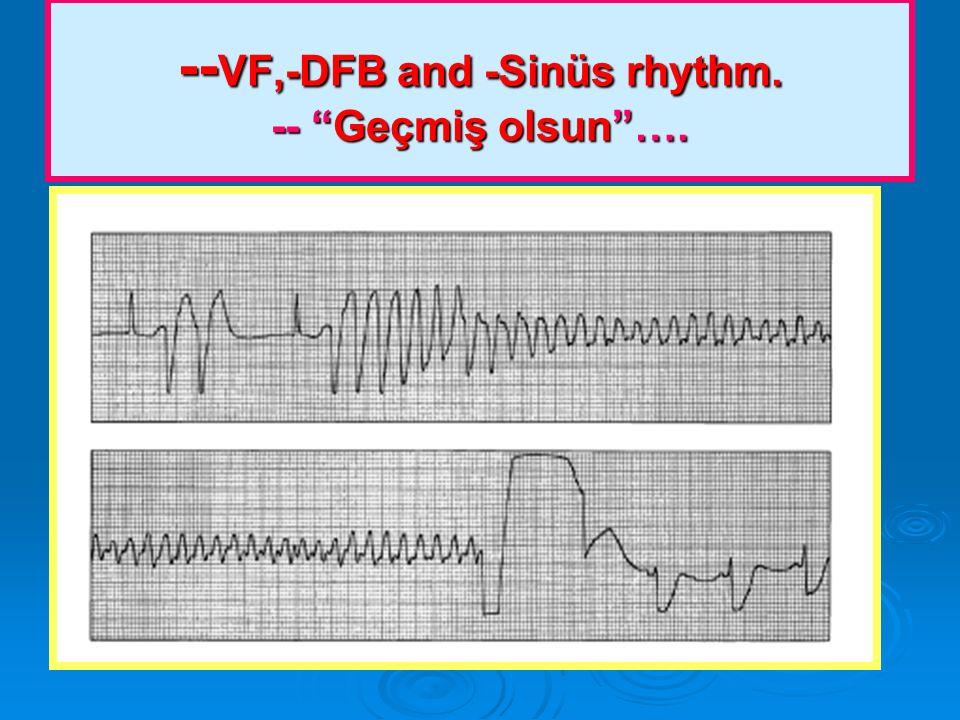 --VF,-DFB and -Sinüs rhythm. -- Geçmiş olsun ….