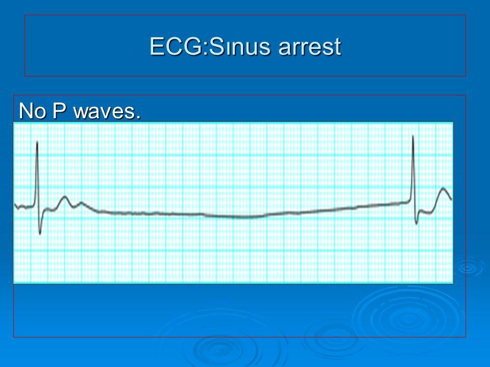 ECG:Sınus arrest No P waves.