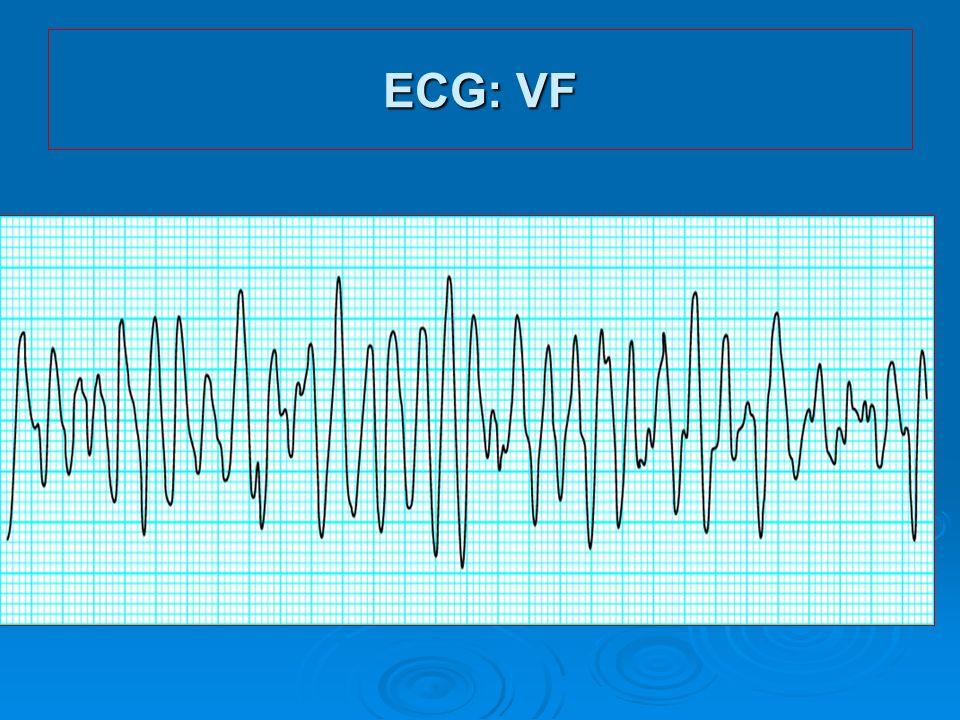 ECG: VF