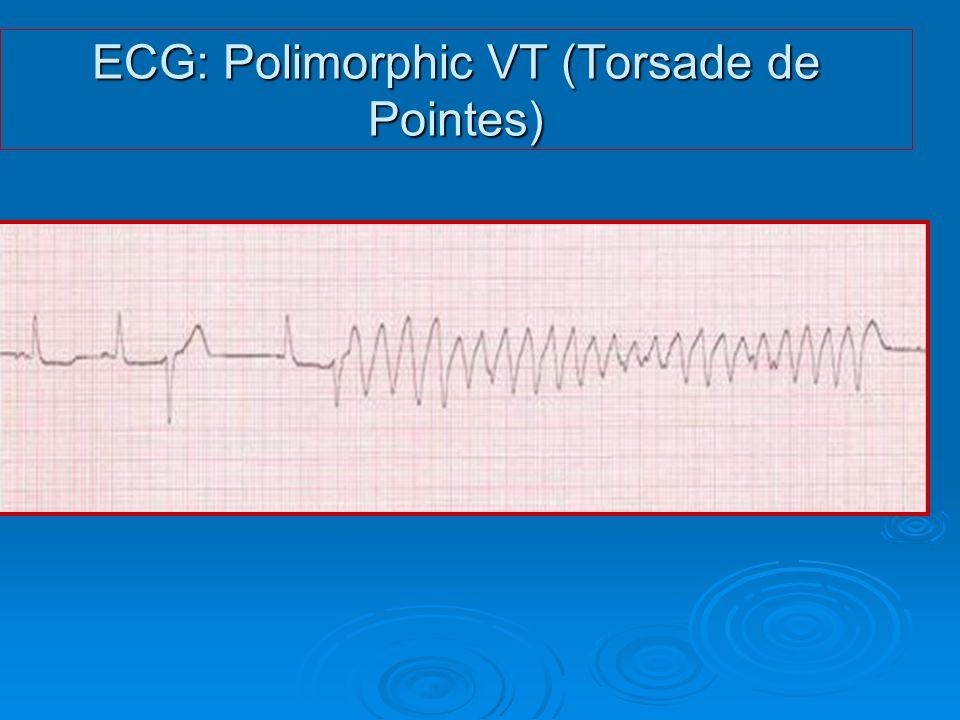 ECG: Polimorphic VT (Torsade de Pointes)