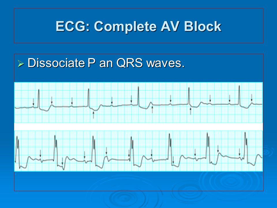 ECG: Complete AV Block Dissociate P an QRS waves.
