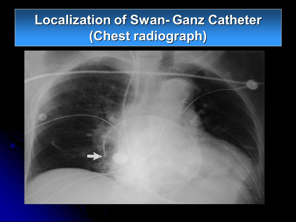 Localization of Swan- Ganz Catheter (Chest radiograph)