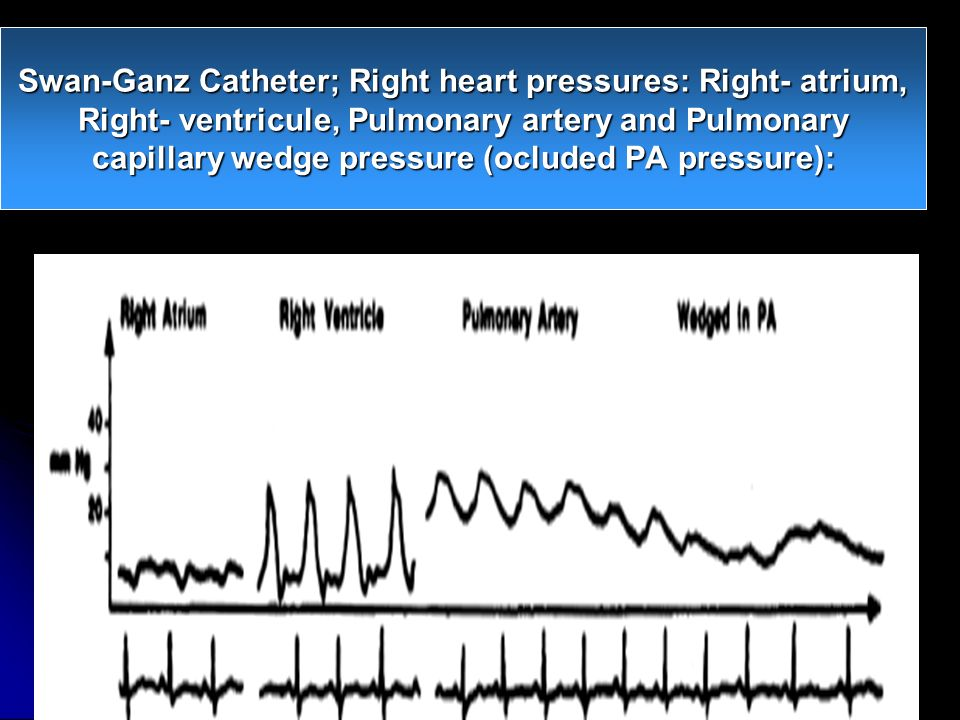 Swan-Ganz Catheter; Right heart pressures: Right- atrium, Right- ventricule, Pulmonary artery and Pulmonary capillary wedge pressure (ocluded PA pressure):