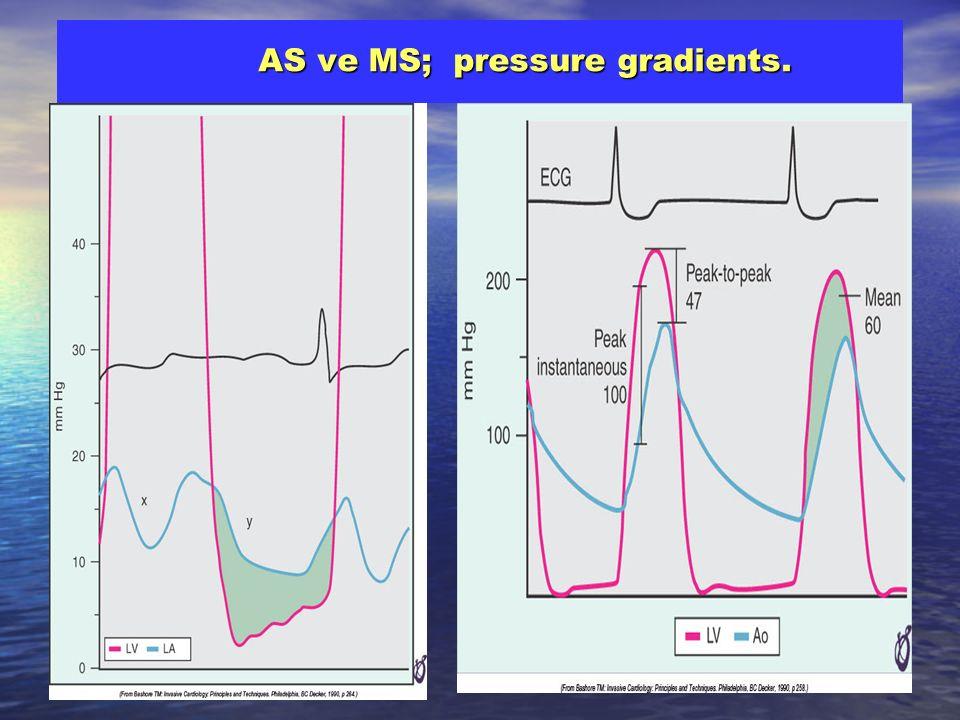 AS ve MS; pressure gradients.