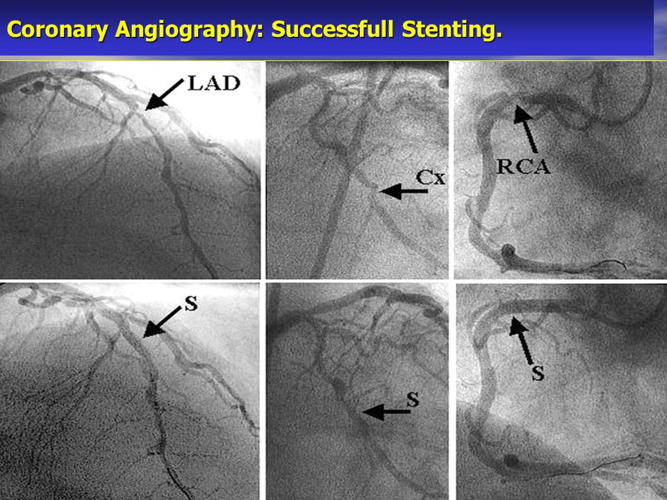 Coronary Angiography: Successfull Stenting.