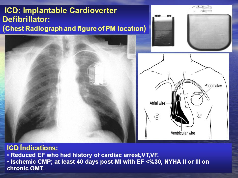 ICD: Implantable Cardioverter Defibrillator:
