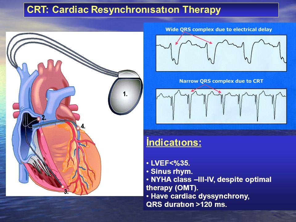 CRT: Cardiac Resynchronısatıon Therapy