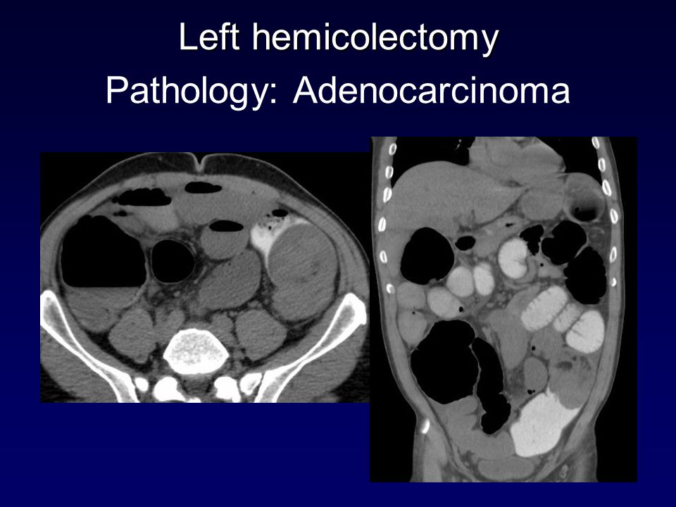 Left hemicolectomy Pathology: Adenocarcinoma