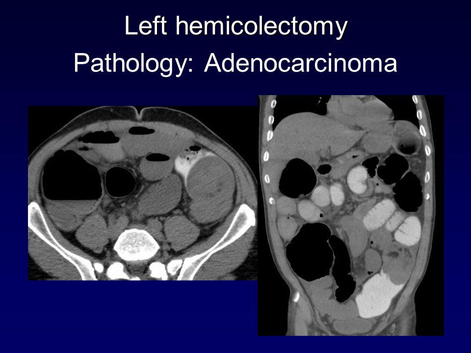 Left hemicolectomy Pathology: Adenocarcinoma