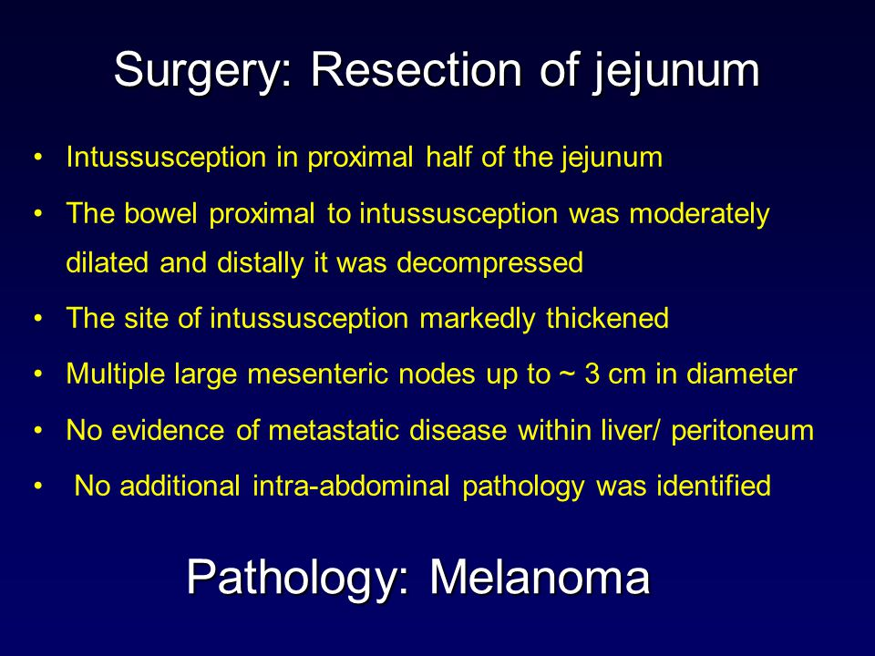 Surgery: Resection of jejunum