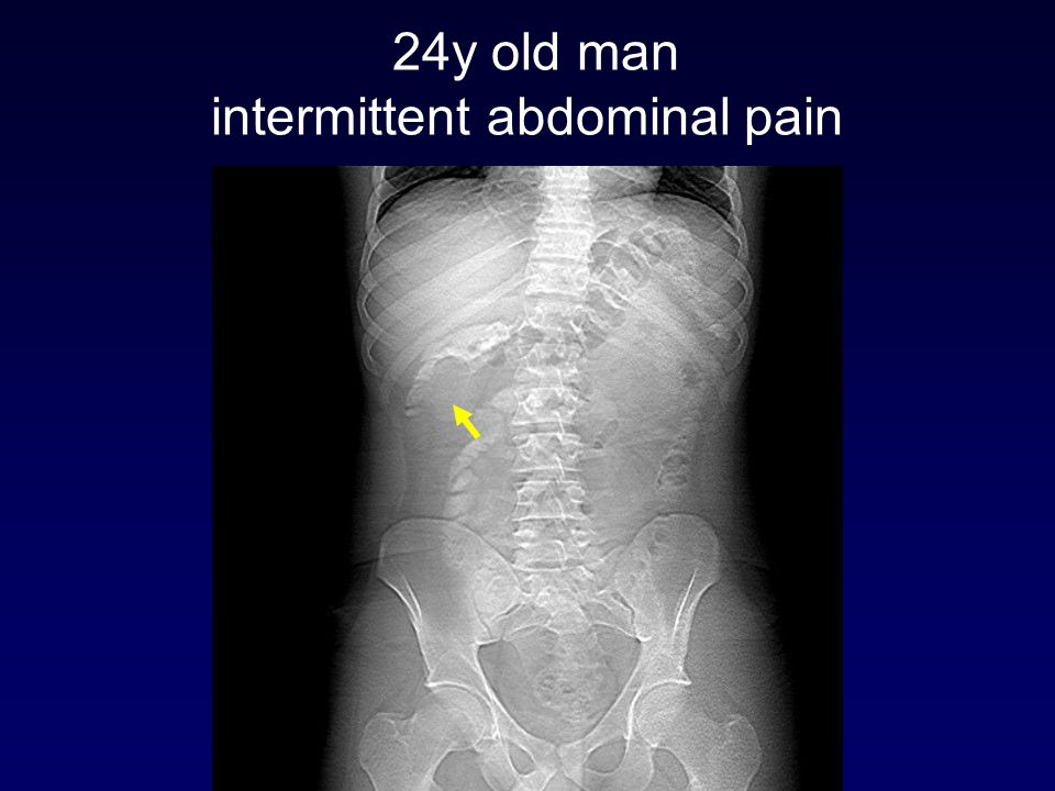 24y old man intermittent abdominal pain