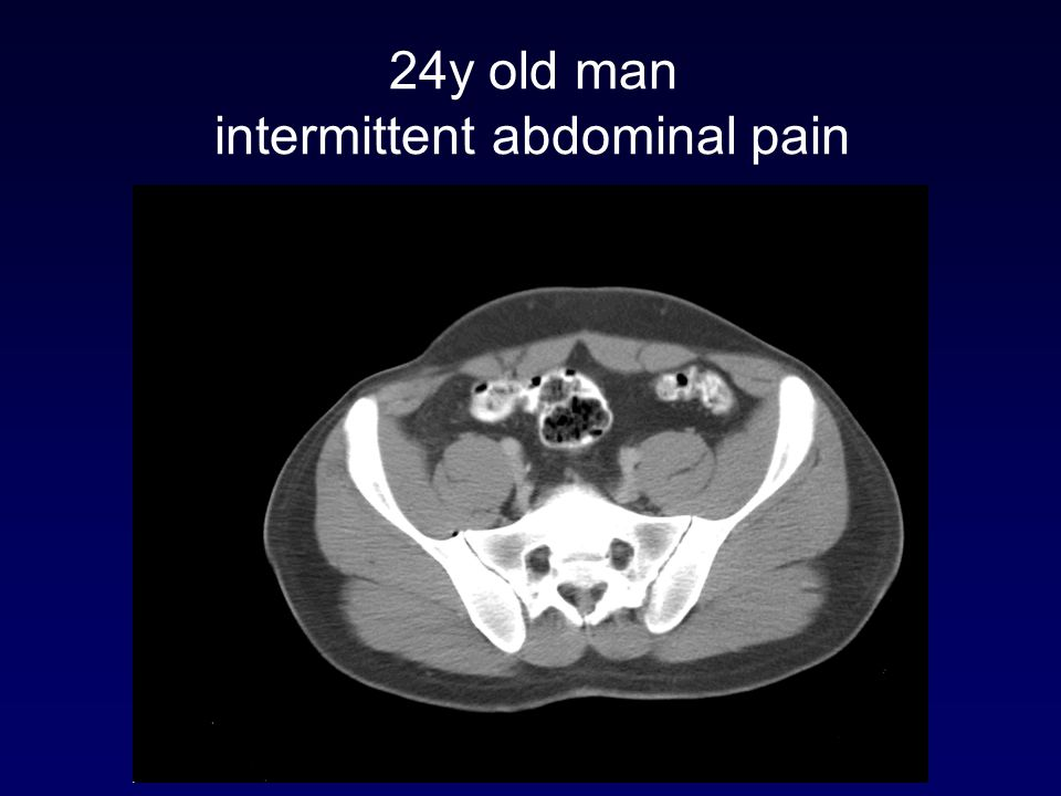 24y old man intermittent abdominal pain