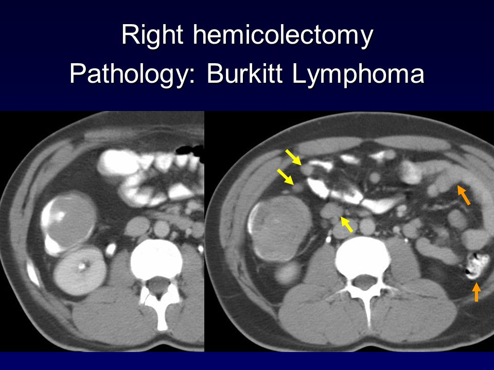 Right hemicolectomy Pathology: Burkitt Lymphoma
