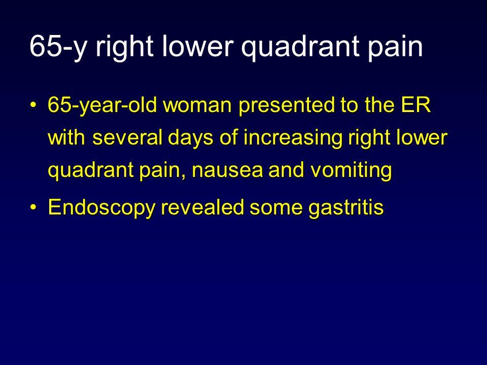 65-y right lower quadrant pain