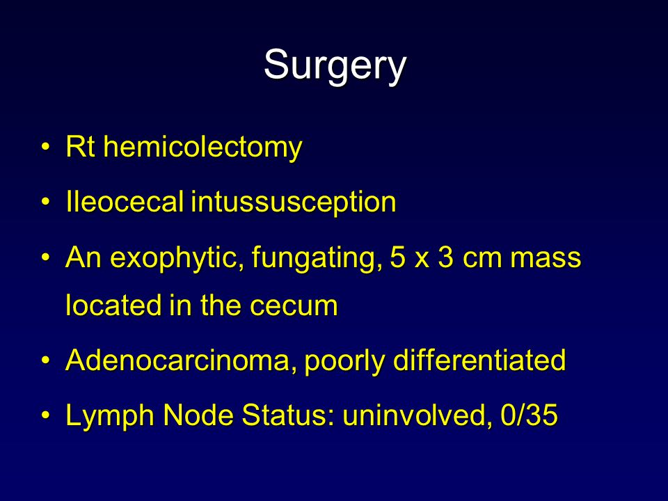 Surgery Rt hemicolectomy Ileocecal intussusception