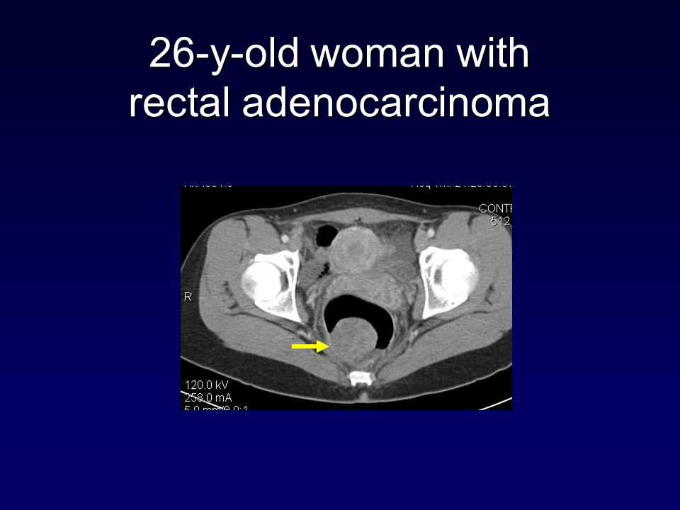 26-y-old woman with rectal adenocarcinoma