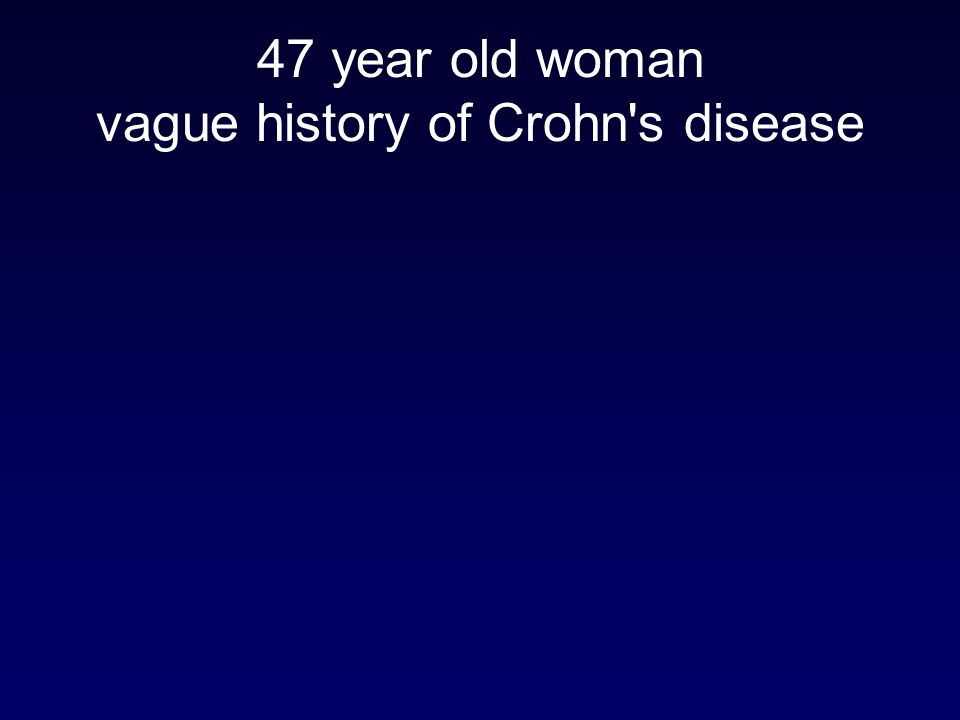 47 year old woman vague history of Crohn s disease
