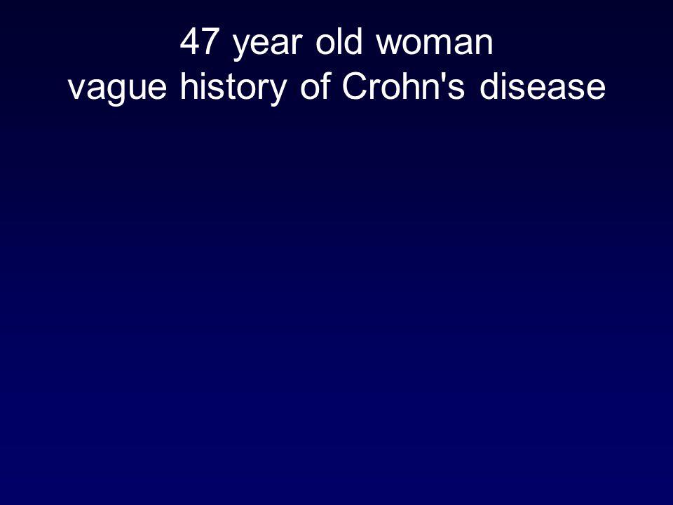 47 year old woman vague history of Crohn s disease