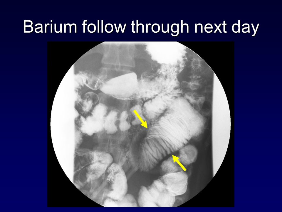 Barium follow through next day