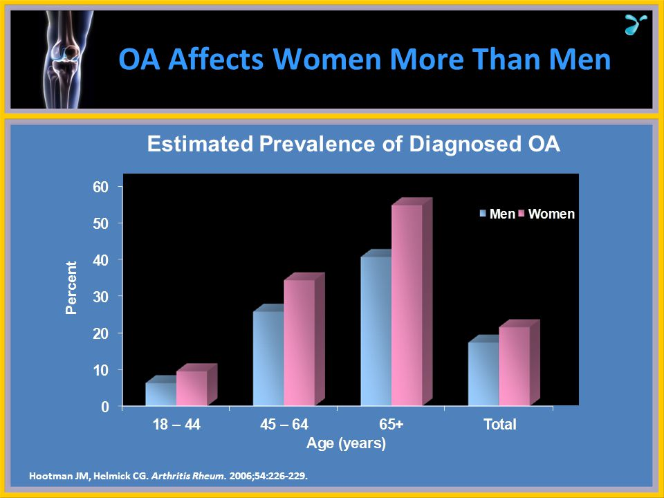 OA Affects Women More Than Men