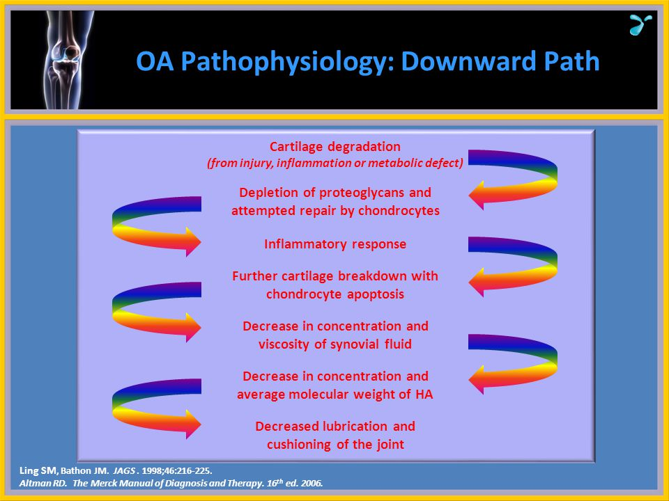 OA Pathophysiology: Downward Path