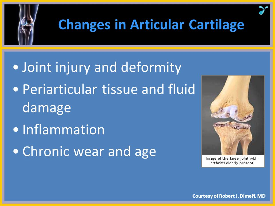 Changes in Articular Cartilage