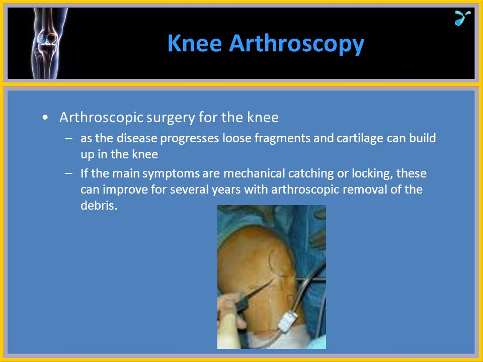 Knee Arthroscopy Arthroscopic surgery for the knee