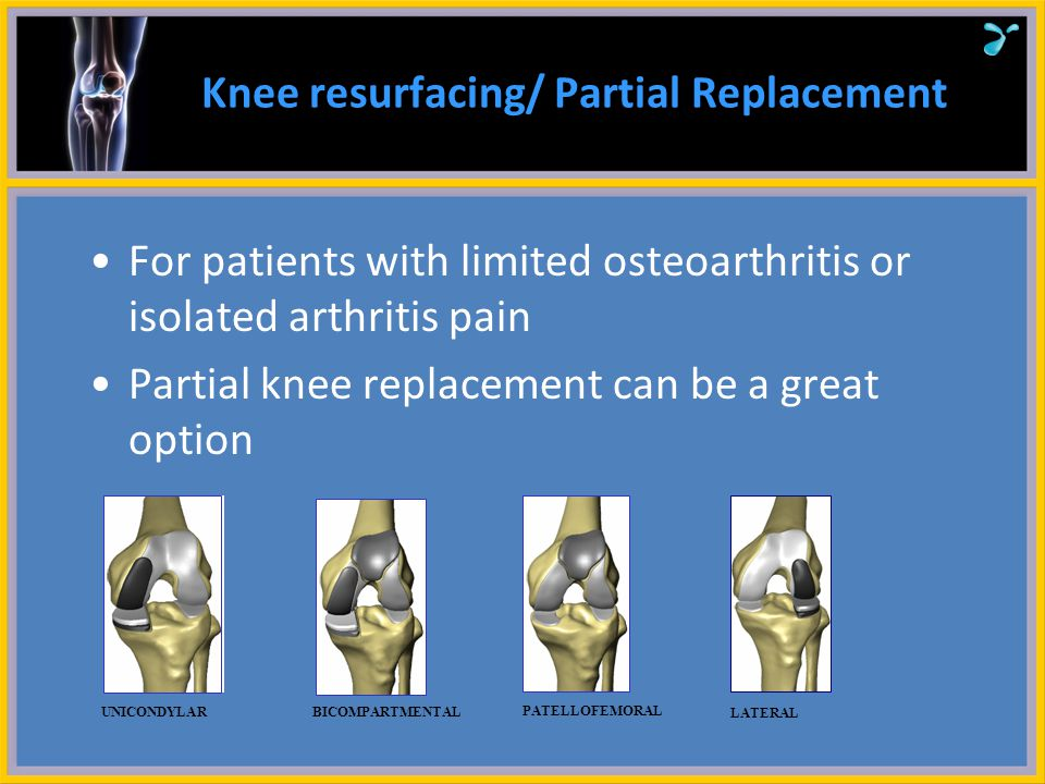 Knee resurfacing/ Partial Replacement