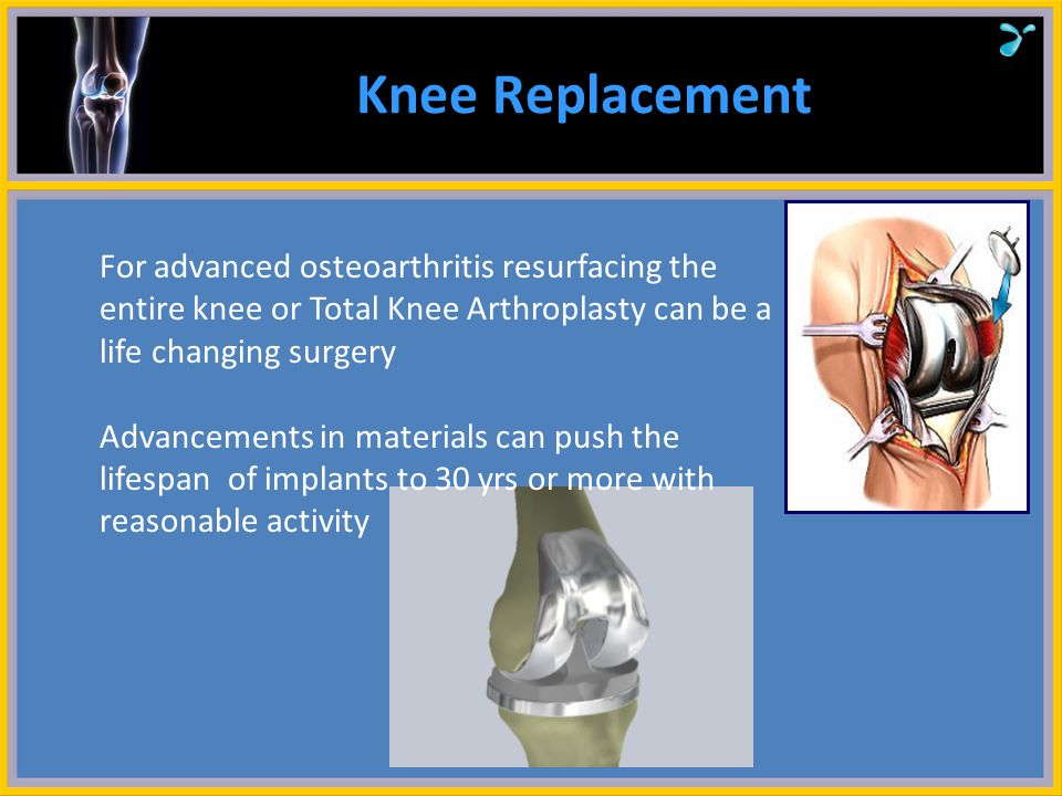 Knee Replacement For advanced osteoarthritis resurfacing the entire knee or Total Knee Arthroplasty can be a life changing surgery.