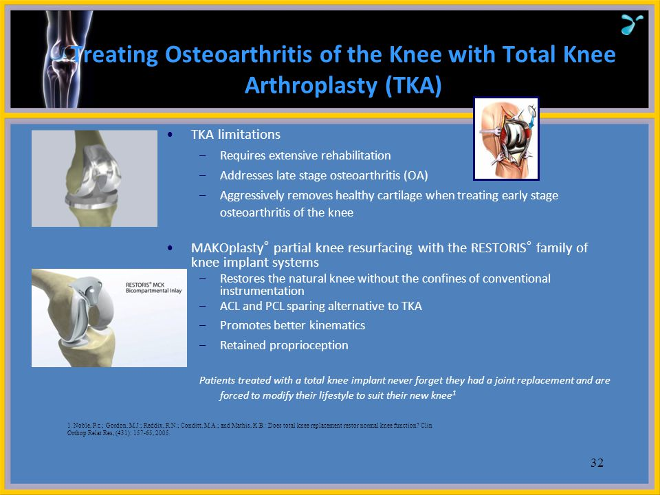 Treating Osteoarthritis of the Knee with Total Knee Arthroplasty (TKA)
