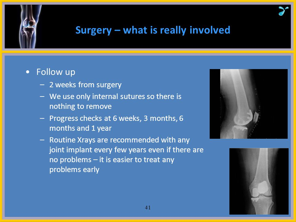 Surgery – what is really involved