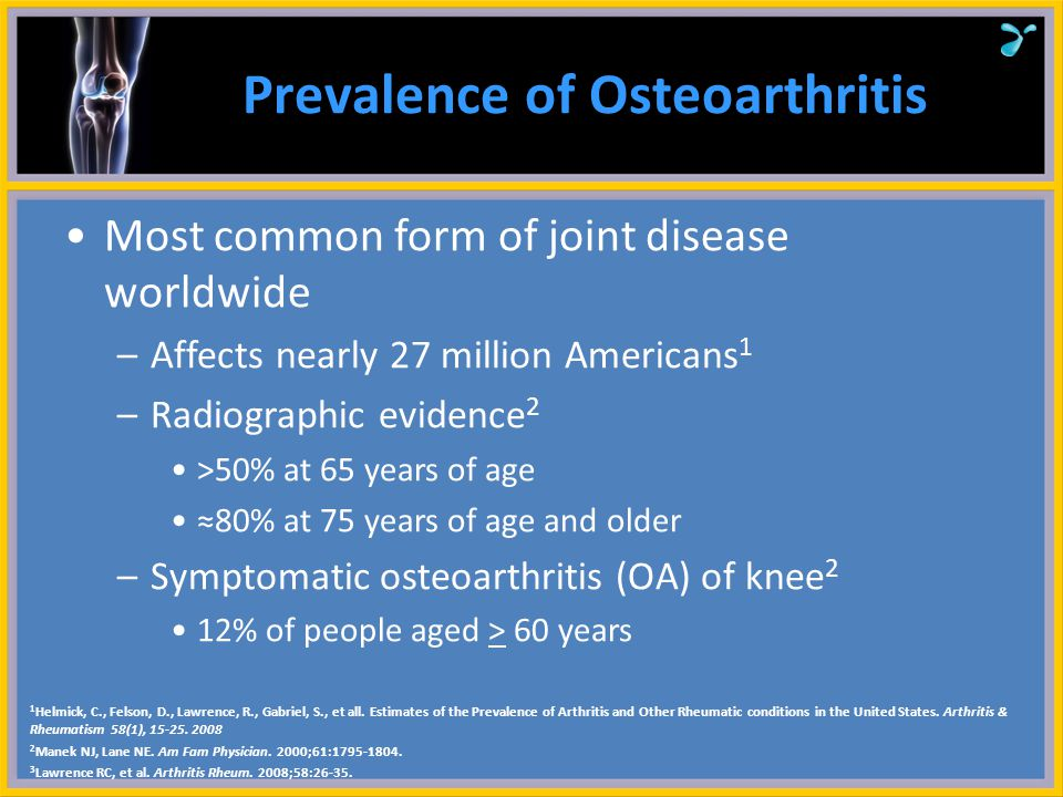 Prevalence of Osteoarthritis