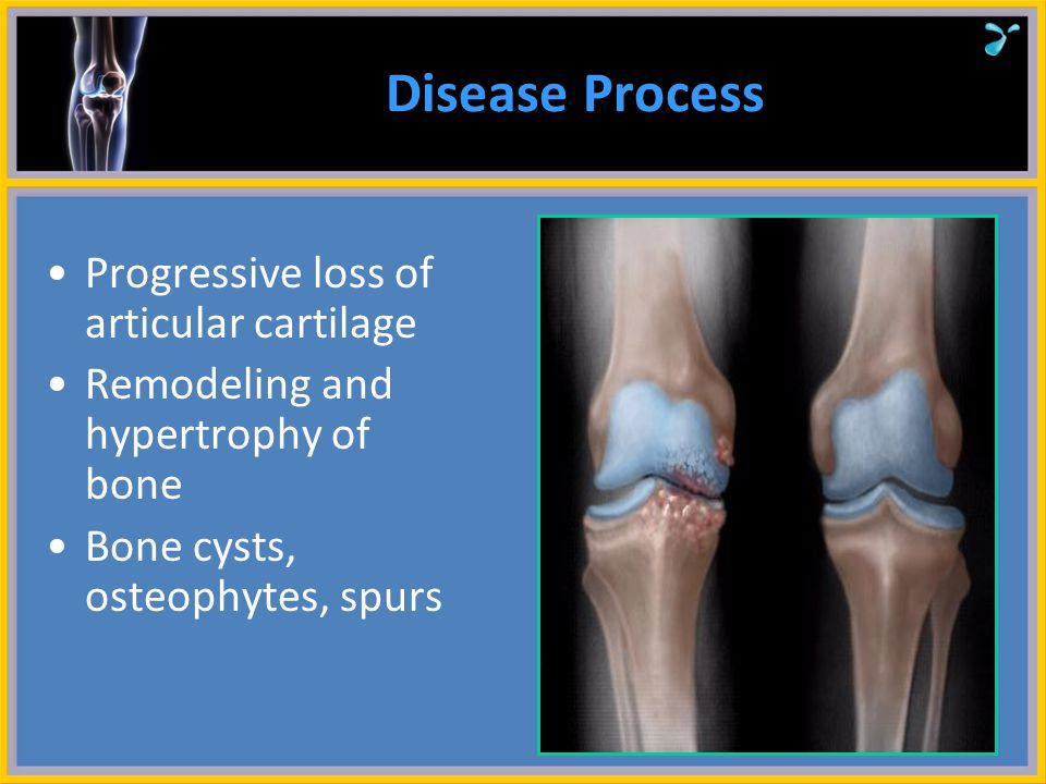 Disease Process Progressive loss of articular cartilage