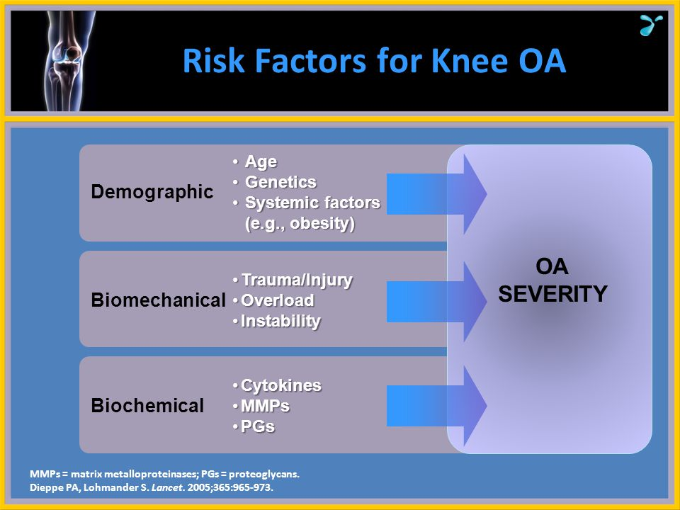 Risk Factors for Knee OA