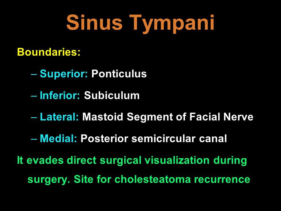 Sinus Tympani Boundaries: Superior: Ponticulus Inferior: Subiculum