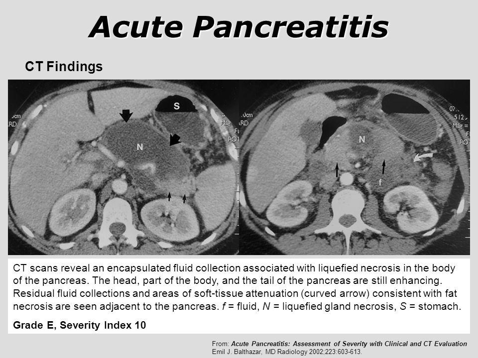 Acute Pancreatitis CT Findings