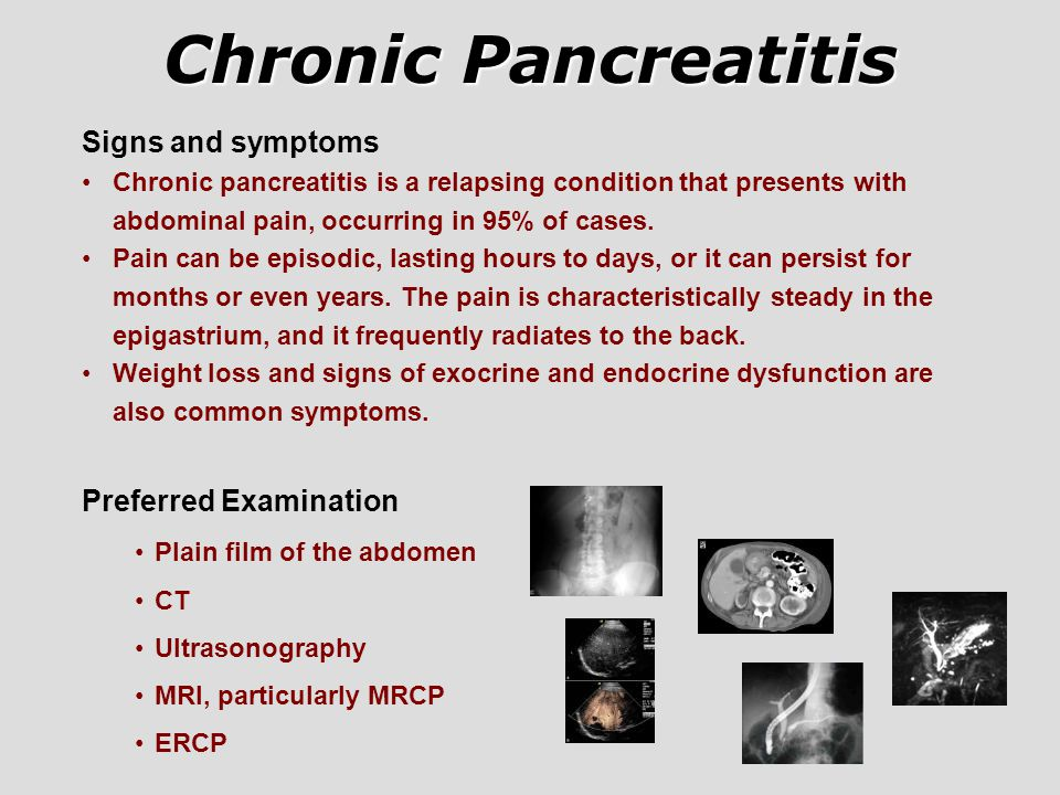 Chronic Pancreatitis Signs and symptoms Preferred Examination