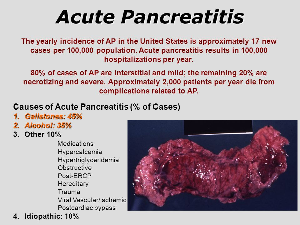 Acute Pancreatitis Causes of Acute Pancreatitis (% of Cases)
