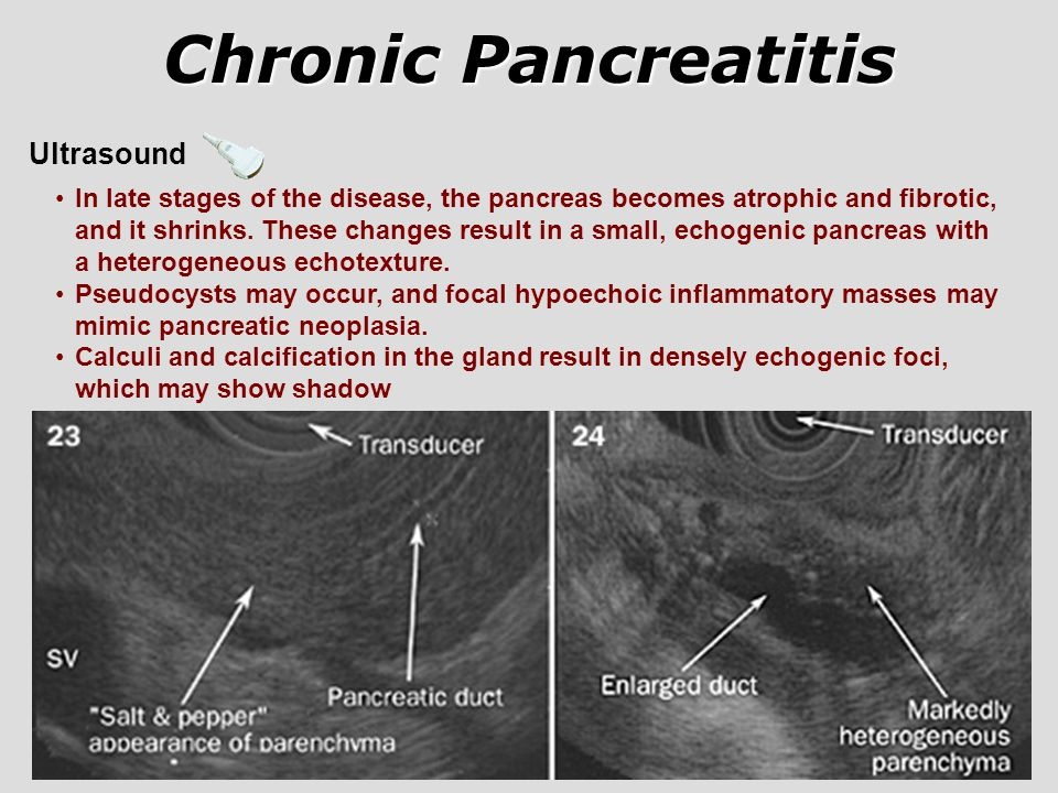 Chronic Pancreatitis Ultrasound