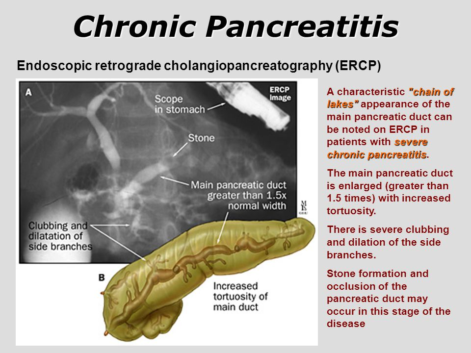 Chronic Pancreatitis Endoscopic retrograde cholangiopancreatography (ERCP)