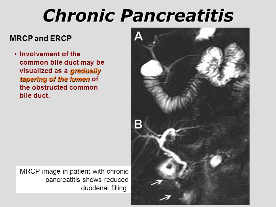 Chronic Pancreatitis MRCP and ERCP
